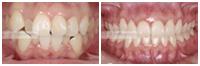 アライナー矯正治療の症例 <br />Aligner Orthodontics Gallery